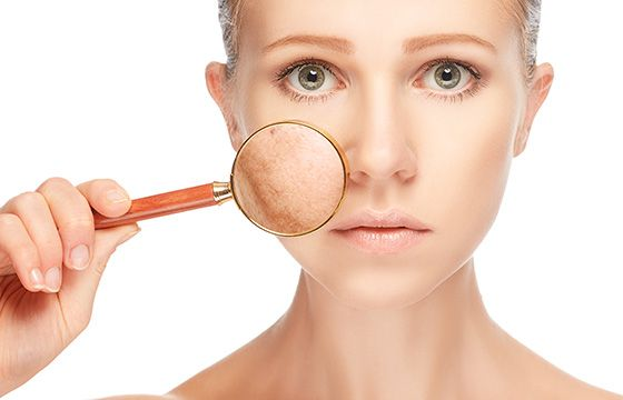 How to Remove Pigmentation from Face Permanently