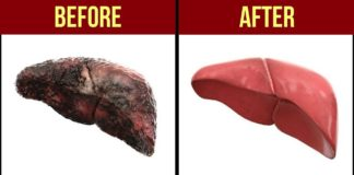 liver-before-and-after